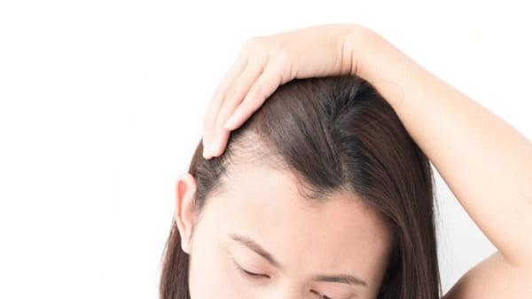 آیا زنان میتوانند از کاشت مو به روش HRT استفاده کنند