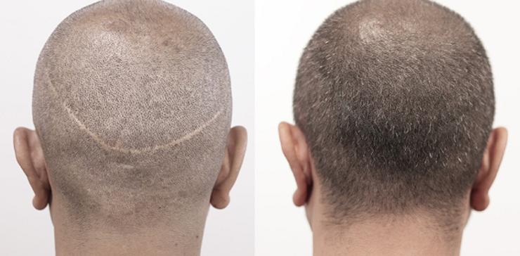 آیا کاشت مو به روش اف یو تی دردناک است؟