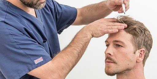 اقدامات مورد نیاز پیش از کاشت مو به روش HRT