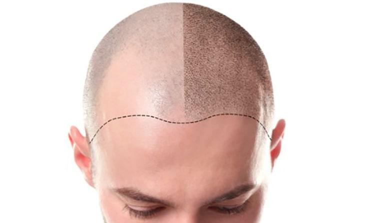 انواع روشهای پیشرفته کاشت مو