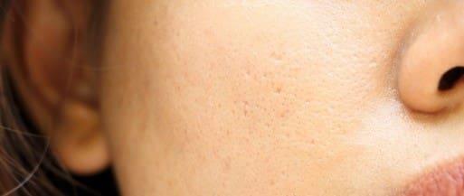 انواع منافذ پوست به چند دسته تقسیم میشود