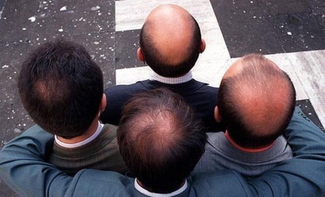 تشخیص ریزش موی ارثی