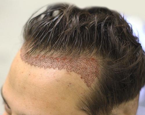 جراحی کاشت مو چه مدت طول میکشد؟