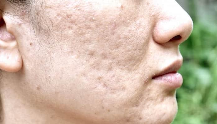 درمان فرورفتگی جای جوش صورت با روشهای خانگی، طب سنتی و راهکارهای پزشکی