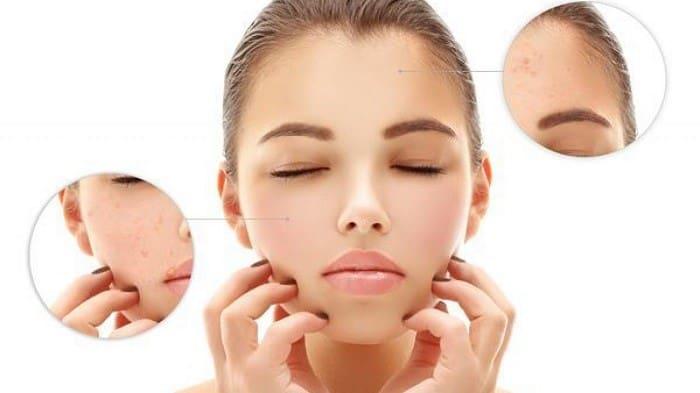درمان پوست پرتقالی با لیزر درمانی