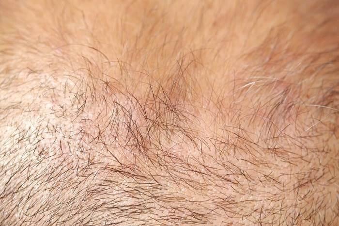 ماه های 0 - 4 مرحله استراحت - کاشت مو