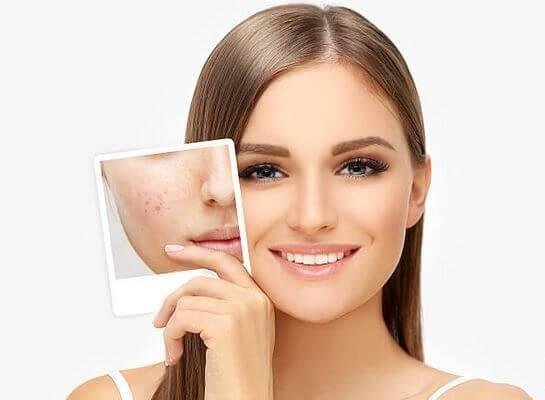 مراقبتهای پس از هیدروفیشیال صورت