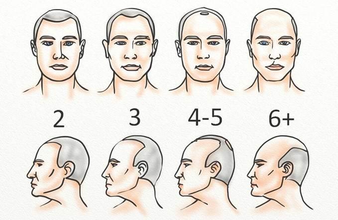 مردان مبتلا به طاسی با الگوی مردانه