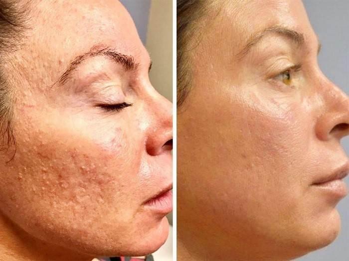 میکرونیدلینگ کدام یک از مشکلات پوست را درمان میکند؟