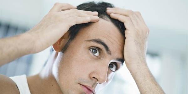 تشخیص کاندیدای مناسب کاشت مو با ناحیه اهدا کننده