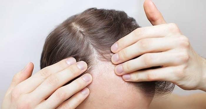 بعد از کاشت مو پوستهها را جدا نکنید