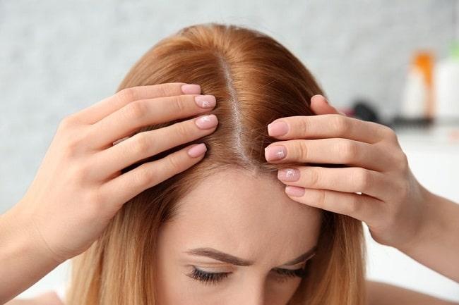 چگونه میتوان ریزش موی اندروژنیک را درمان کرد