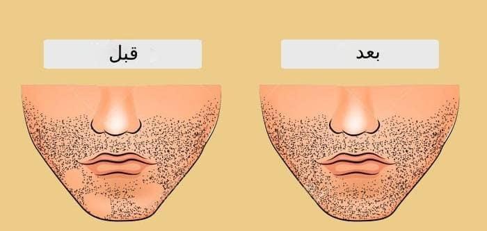 کاشت موی صورت