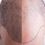 پی آر پی(PRP) موی سر برای درمان ریزش و کاشت مو